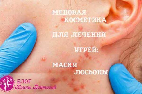 Медовая косметика: Лосьоны и маски для лица с медом от угрей