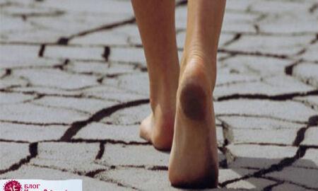 Трещины на пятках: почему возникают, как избежать, чем лечить