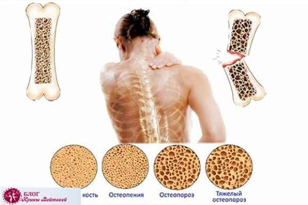 Тяжелые переломы— это тихий крик остеопороза