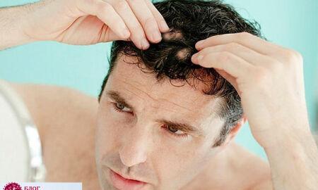 Выпадение волос у мужчин: признаки, причины, лечение