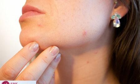 Проблемная кожа— не проблема: секреты правильного ухода за кожей с прыщами, акне и жирным блеском
