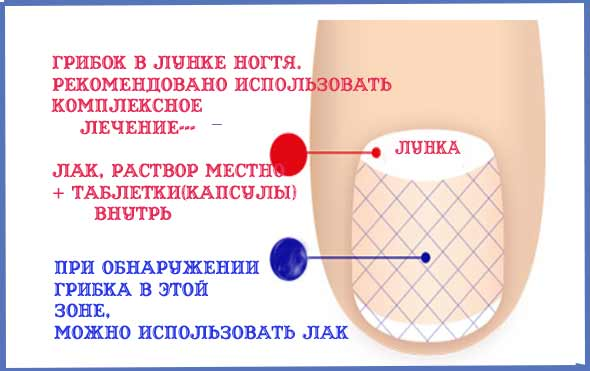 зоны-поражения-ногтя-грибком